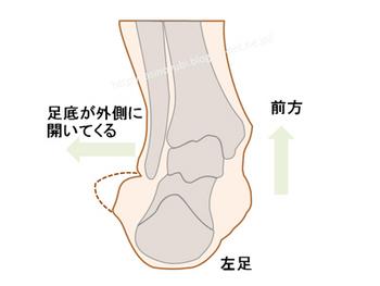 後脛骨筋機能不全の人の足