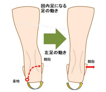 回内足の人の足の動き