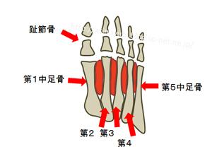 足底の骨格の説明図