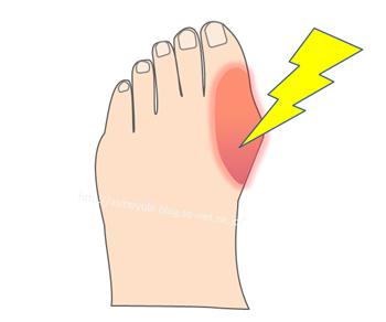 痛風で親指の付け根が痛んでいるところ