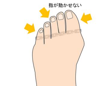 動かせない足の指