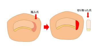 陥入爪の爪を手術で切り取ったところ