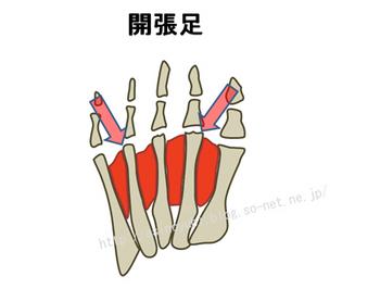外反母趾の人の足の骨格