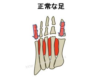 正常な人の足の骨格