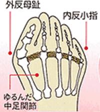 外反母趾になっている人の足の状態