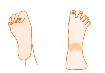 足の指でグーとパー